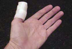 Photo of injured thumb